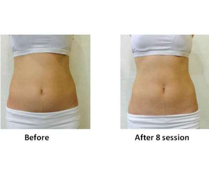 30% OFF Body contouring and Slimming is a Health & Beauty Services service in Toronto ON