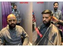 Hair Wigs in Delhi